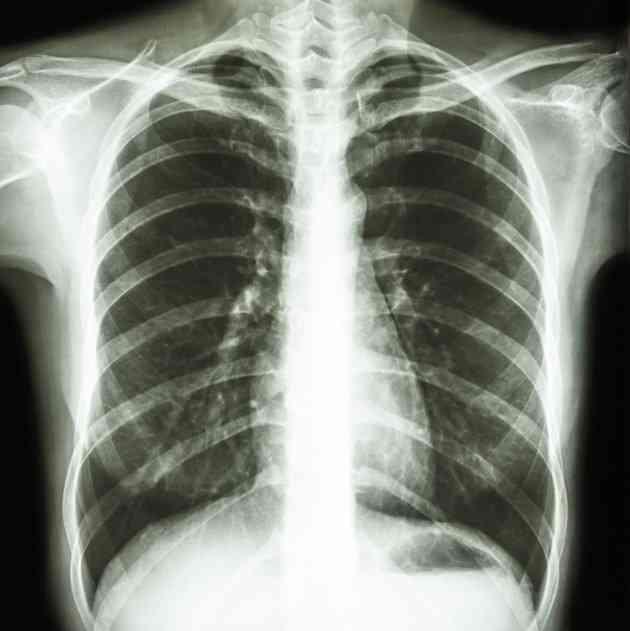 poate tumorile pulmonare benigne cauzează pierderea în greutate)